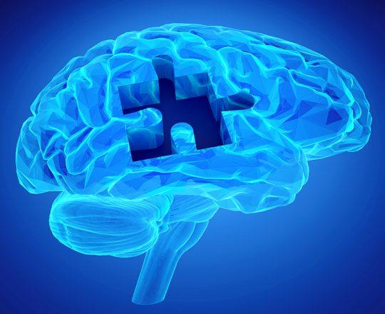 Alzheimer: tratamento antecipado ajudaria a frear sintomas