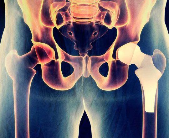 Artrose de Quadril: Doença degenerativa pode ser incapacitante