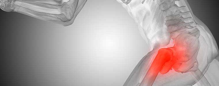 Bursite no quadril causa dor na região do fêmur e atrapalha corrida