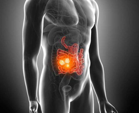 Câncer Colorretal: Crescimento anormal das células do intestino