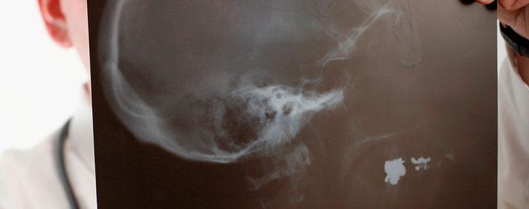 Câncer de Cabeça e Pescoço: causas, sintomas e tratamentos