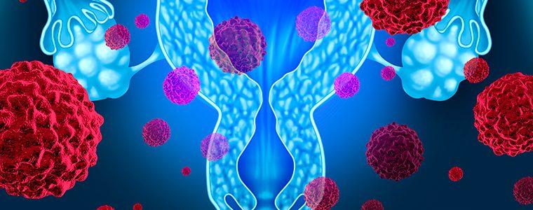 Câncer de ovário é o tumor ginecológico de menor chance de cura