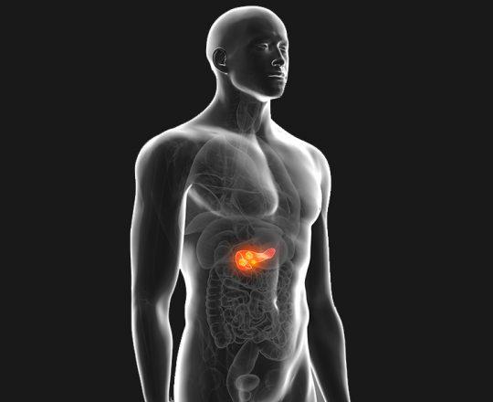 Câncer de Pâncreas: Veja quais os famosos que morreram por conta da doença