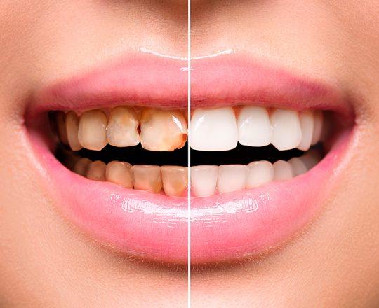 Clareamento Dental: A solução para o sorriso amarelo