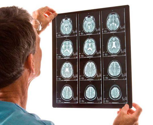 Derrame Cerebral: É preciso tomar cuidado com os fatores de risco