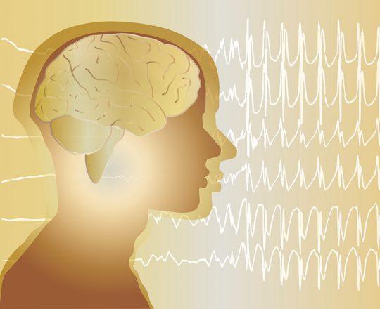 Epilepsia: causas, sintomas e tratamentos