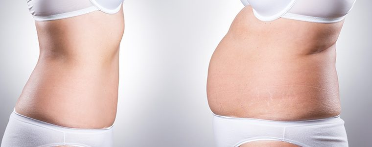 Lipoaspiração não é tratamento para obesidade