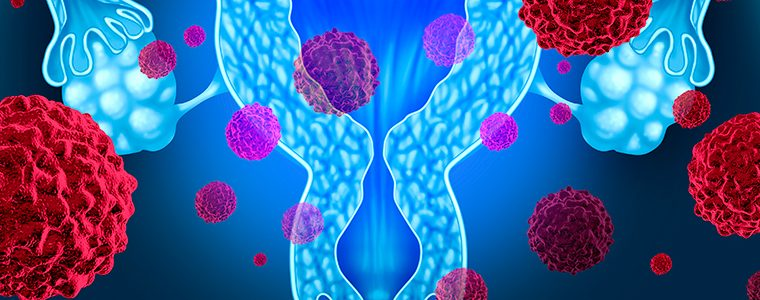 Muitas mulheres não sabem os riscos do câncer de ovário