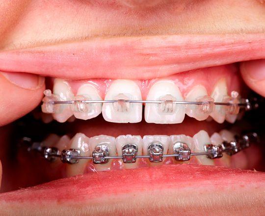 Ortodontia: O segredo do sorriso perfeito