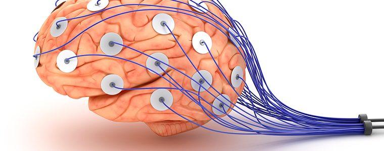 Pesquisadores desenvolvem sensor de cérebro sem fios e solúvel