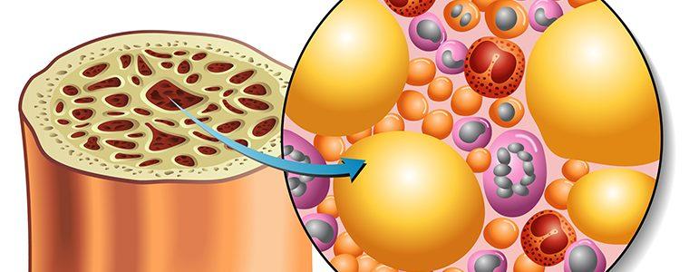 SUS passa a oferecer transplante de medula óssea no tratamento de doença falciforme