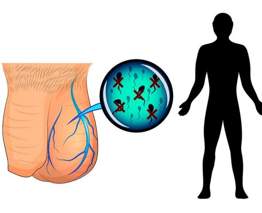Varicocele: Causa tratável mais comum de infertilidade masculina
