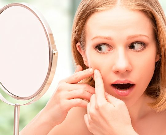 Você sabe como evitar a acne?