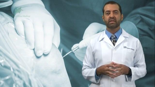 A artroscopia tem lugar no tratamento da Artrose do Joelho?