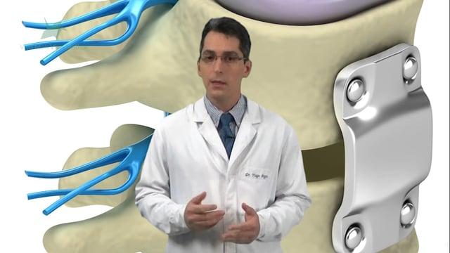 Como é feita a cirurgia para estenose lombar?