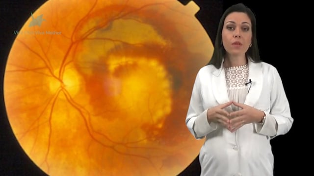 Como é feito o diagnóstico da degeneração macular relacionada à idade?