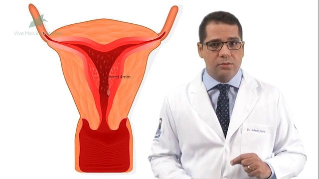 Como se chega ao diagnóstico do Câncer de Endométrio?