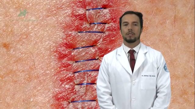 Como suspeitar que uma lesão na pele pode ser um câncer?