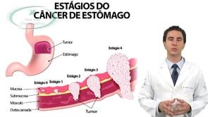 Existe cura para o câncer de estômago?