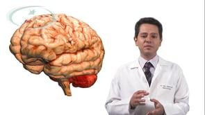 O que acontece quando um aneurisma cerebral sangra?