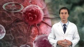 O que é Câncer de Estômago?