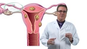 O que é embolização de Miomas?