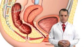 O que é endometriose?