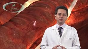 O que é o aneurisma cerebral?