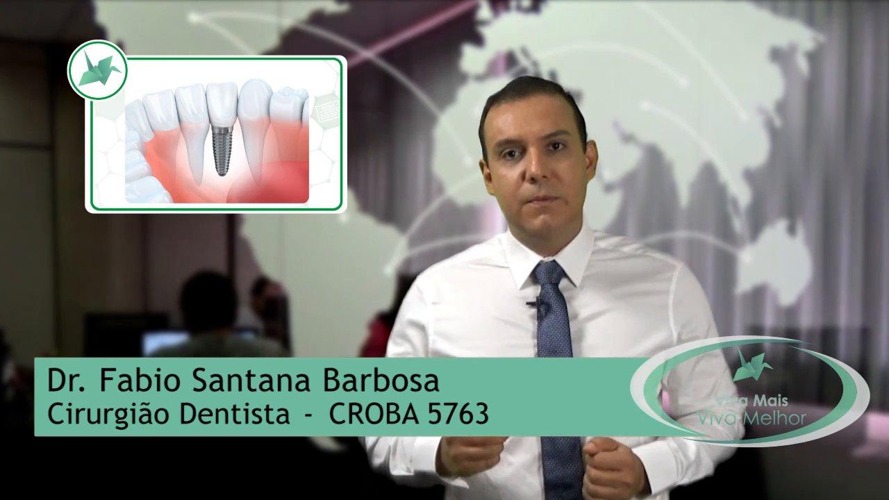O que é o implante dentário? Como são instalados os implantes dentários? Quanto tempo leva a cirurgia para instalação de implante dentário?