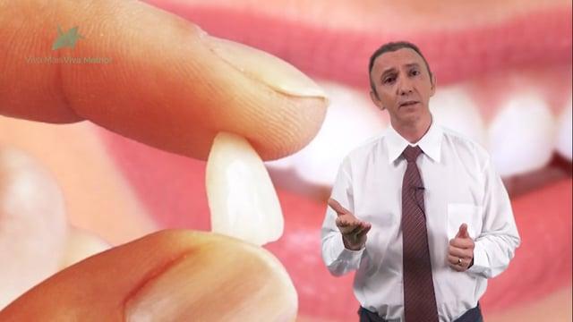 O que são lentes de contato dental?