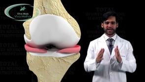 Quais as lesões associadas à rotura do Ligamento Cruzado Anterior?