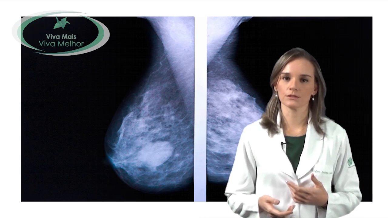 Quais exames devem ser realizados na rotina da prevenção do Câncer de Mama?
