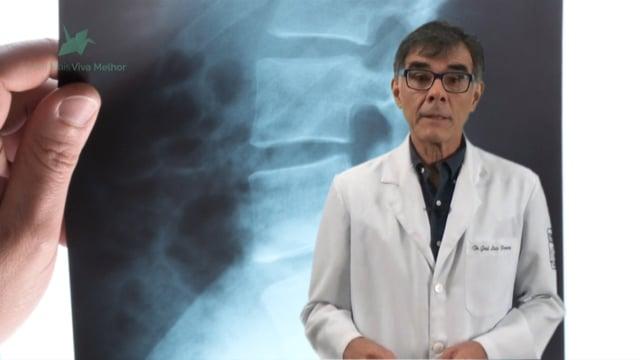 Quais os exames mais solicitados para diagnosticar um problema na coluna? Quando estaria indicada a realização do exame de ressonância magnética?