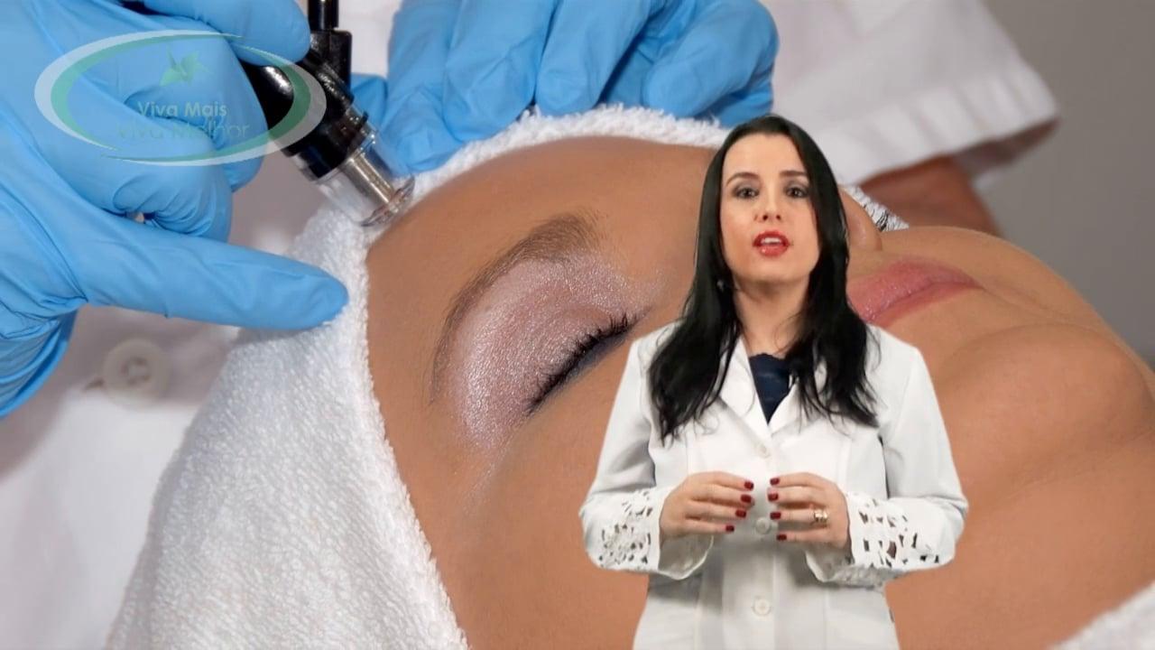 Quais os novos tratamentos para Calvície?