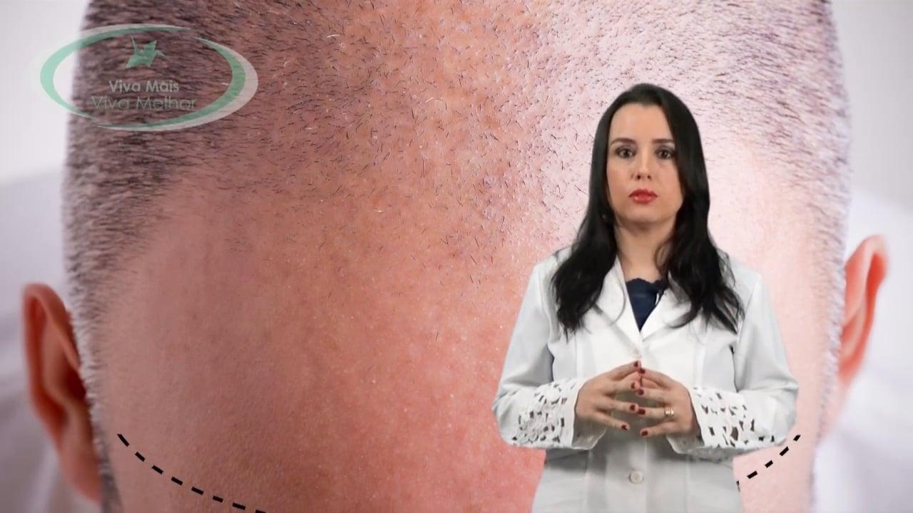 Quais os primeiros sinais de calvície e qual a perda de cabelos considerada normal?