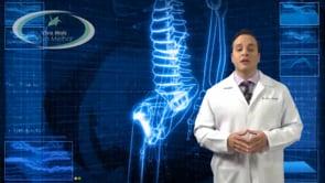 Qual é a causa da osteoartrose do quadril?