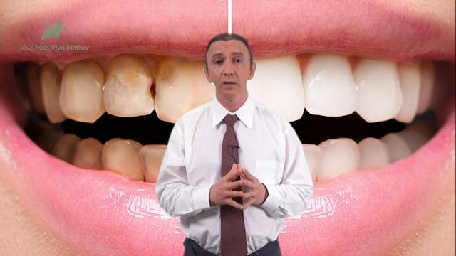 Que tipo de problemas as lentes de contato dental podem corrigir?