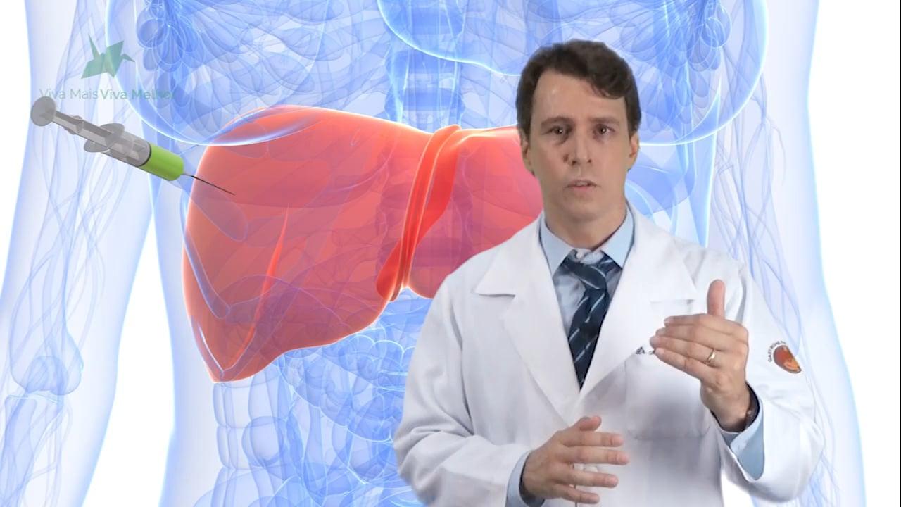 Quem tem hepatite C precisa fazer uma biopsia hepática?