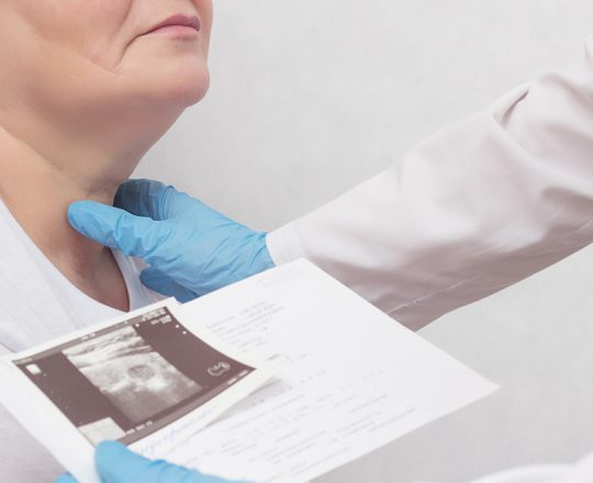 Radioablação, técnica minimamente invasiva para tratar nódulos da tireoide