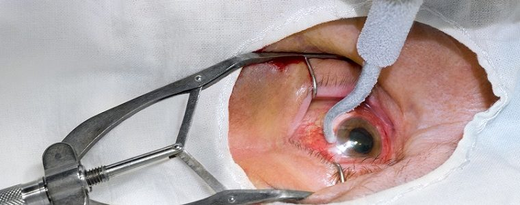 Sombras móveis no campo de visão podem indicar descolamento de vítreo
