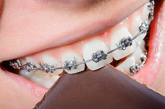 Dentes mal posicionados: Aparelho fixo provoca cárie?