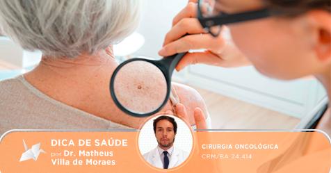 Mito ou verdade: Para um câncer de pele pequeno, em estágio inicial, muitas vezes um tratamento localizado pode ser o suficiente.