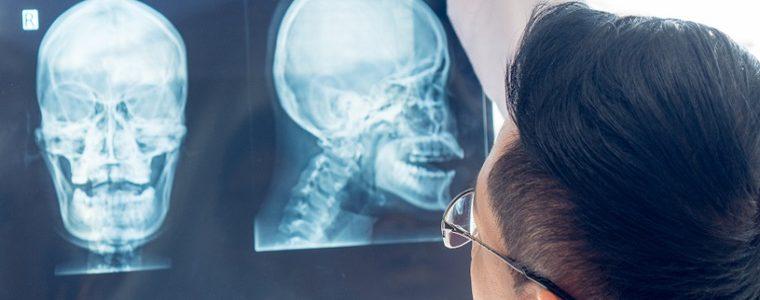 Infecção por HPV contribui para o aumento de casos de câncer de cabeça e pescoço