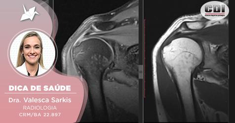 Ressonância Magnética: Como avaliar o sistema musculoesquelético?