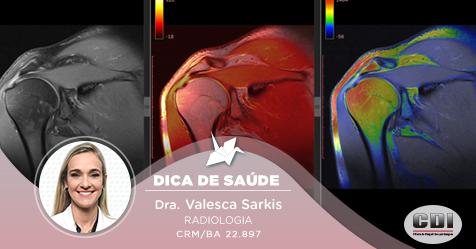 Quais são os achados mais comuns na avaliação do ombro por ressonância magnética?