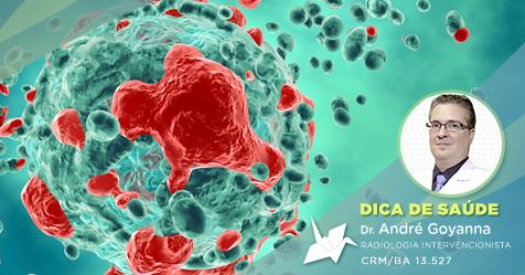 Mioma: Tumor maligno ou benigno?