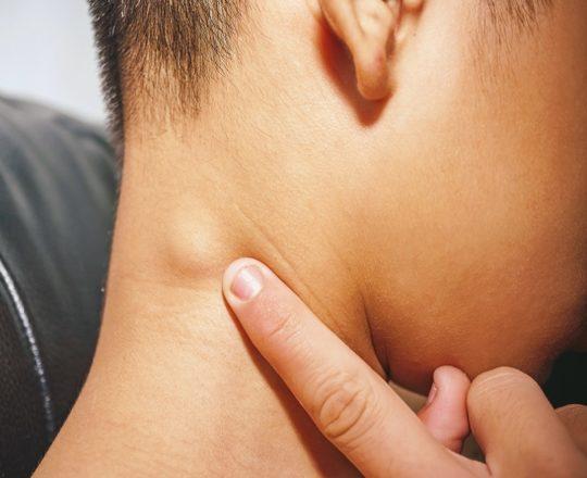Ínguas no pescoço devem ser motivo de preocupação?