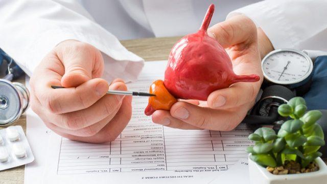 Embolização das artérias da próstata pode ser indicada para tratar hiperplasia benigna