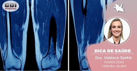 É possível diagnosticar, através da ressonância magnética, lesões sutis como estiramento muscular ou extensas roturas?