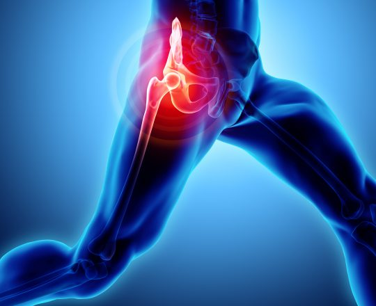 Os benefícios da artroscopia do quadril para tratamento de lesões no quadril